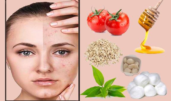 Acne Treatment For Naturally Oily Skin Dedo Tech